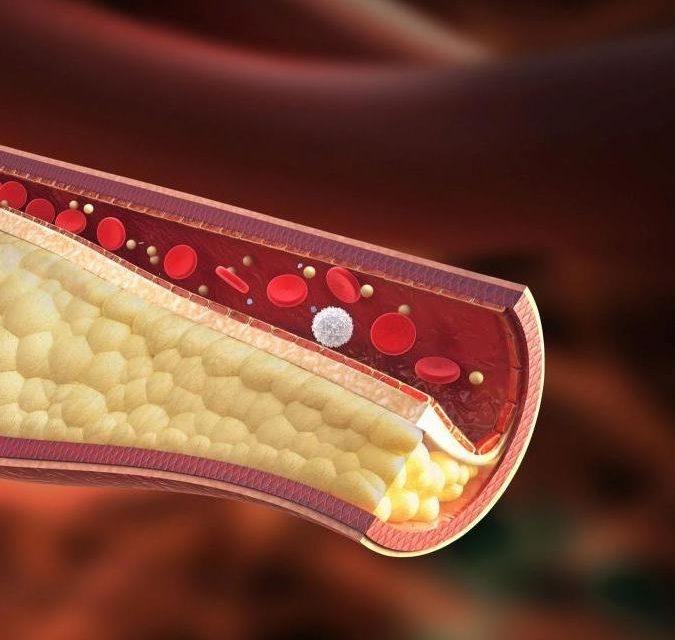 https://omnia-medica.it/wp-content/uploads/2020/08/colesterolo-e-trigliceridi-675x640.jpg