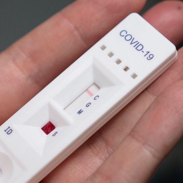 https://omnia-medica.it/wp-content/uploads/2020/08/test-sierologici.jpeg